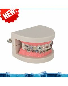Monday Kids Dental Orthodontic Treatment Model Typodont With Ortho Metal Ceramic Bracket Arch Wire Buccal Tube Ligature Ties teeth model