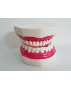 Monday Kids Denture Teeth Dental ModelsDental Implant Disease Model with Restoration Bridge Tooth Dentist for Medical Science