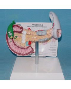 Monday Kids Tabled - type gallstones and spleen - pancreas model of human lesion visceral anatomical model